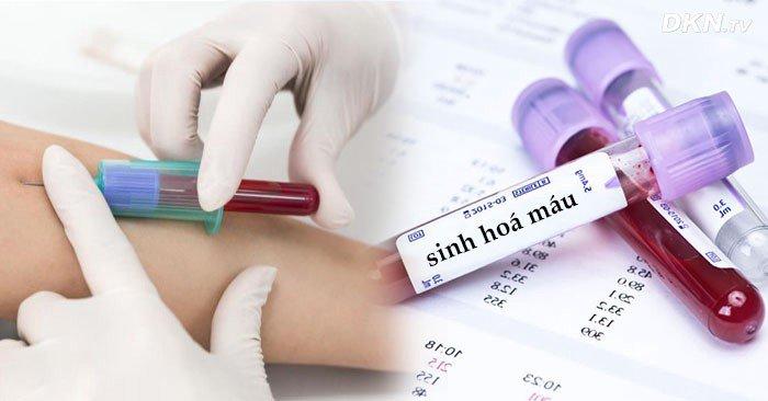 Giá xét nghiệm máu khi mang thai